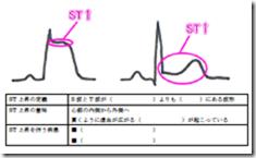心電図の読み方:ST上昇