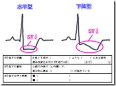 心電図の読み方 ST低下